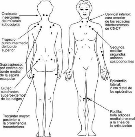 fibromialgia02